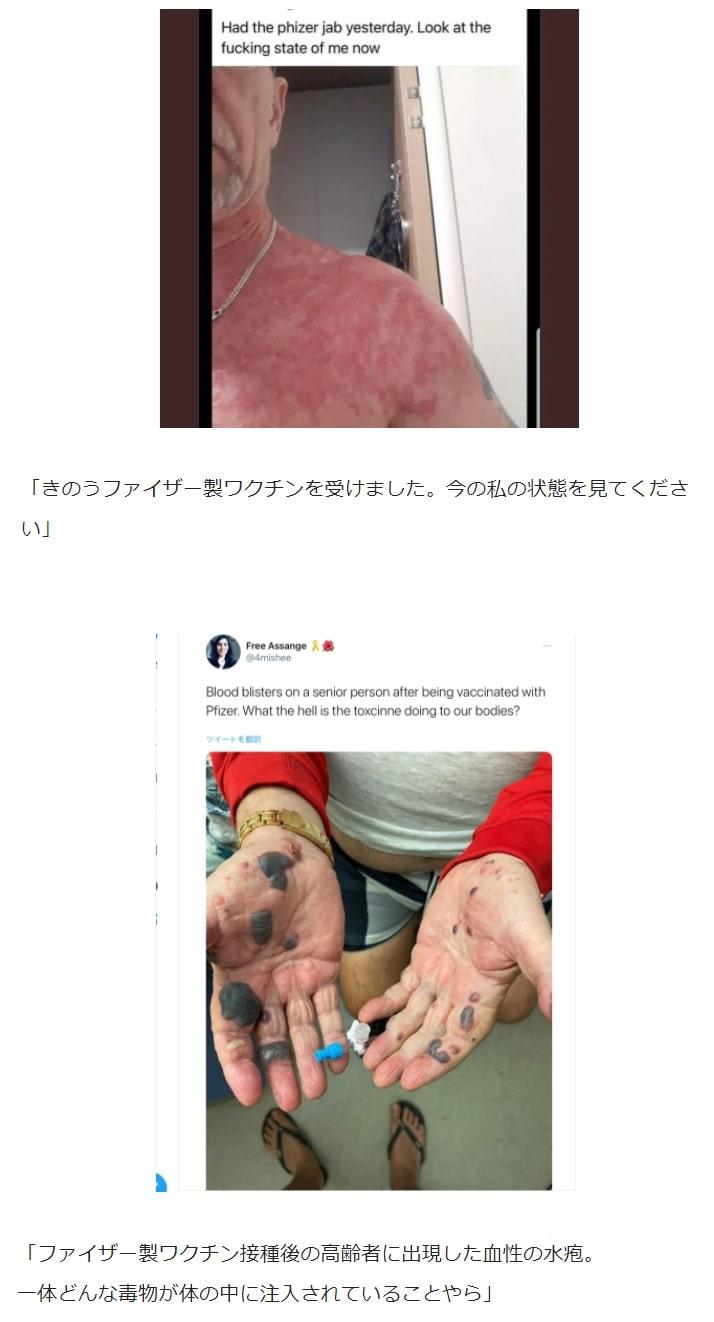 【人体実験】コロナワクチン副作用報告 ~その21~